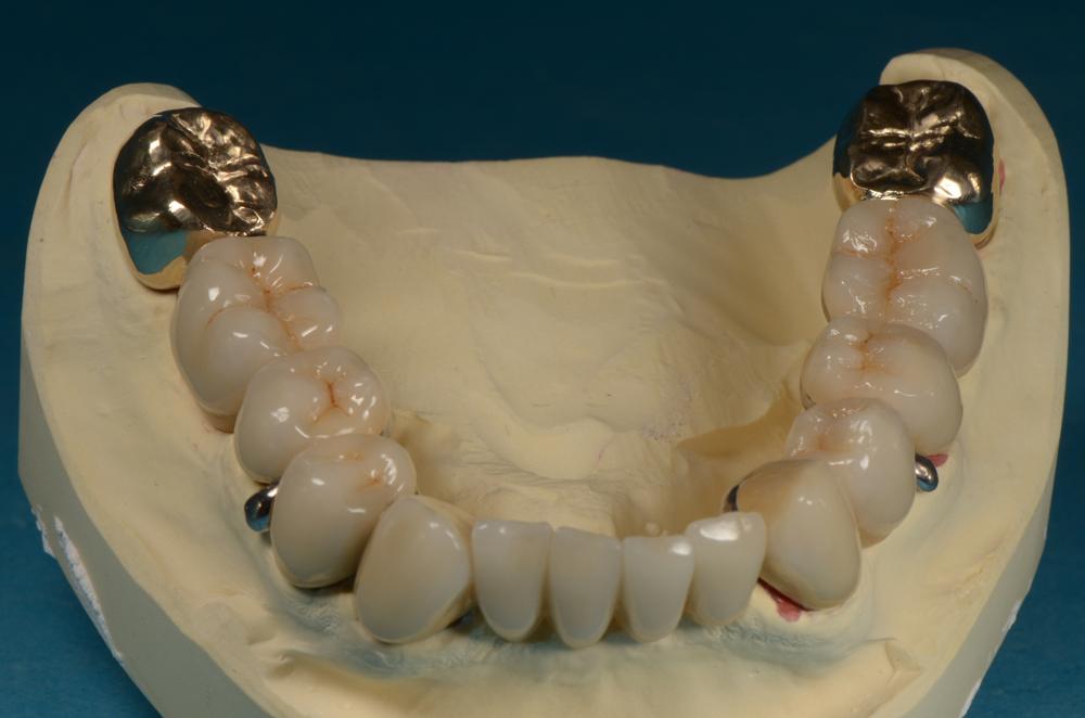 Bildergalerie: dental technik haase